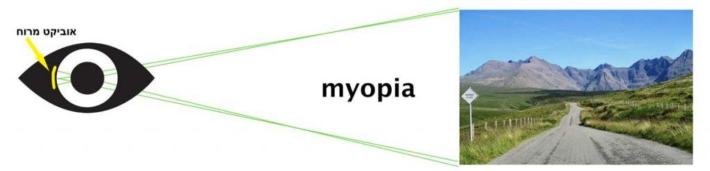 תמונת-הסבר-מה-זה-קוצר-ראיה-או-מיופיה